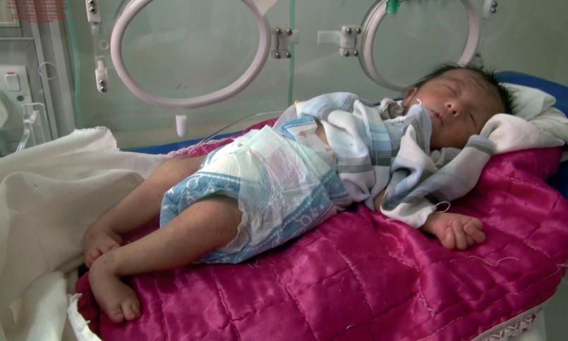 写真(劣化ウラン弾が原因で、先天性心臓疾患と四肢奇形になった女の子) 出典:Donna Mulhearn